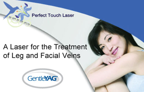 A Laser for the Treatment of Leg and Facial Veins.